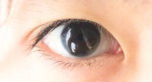 ICL(眼内コンタクトレンズ)手術は医療費控除で安くなる